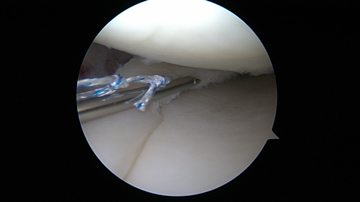 Meniscal Repair Advancing FastfixMeniscal Repair Advancing Fastfix